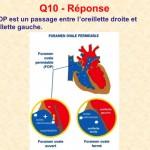 Reponse_Q10